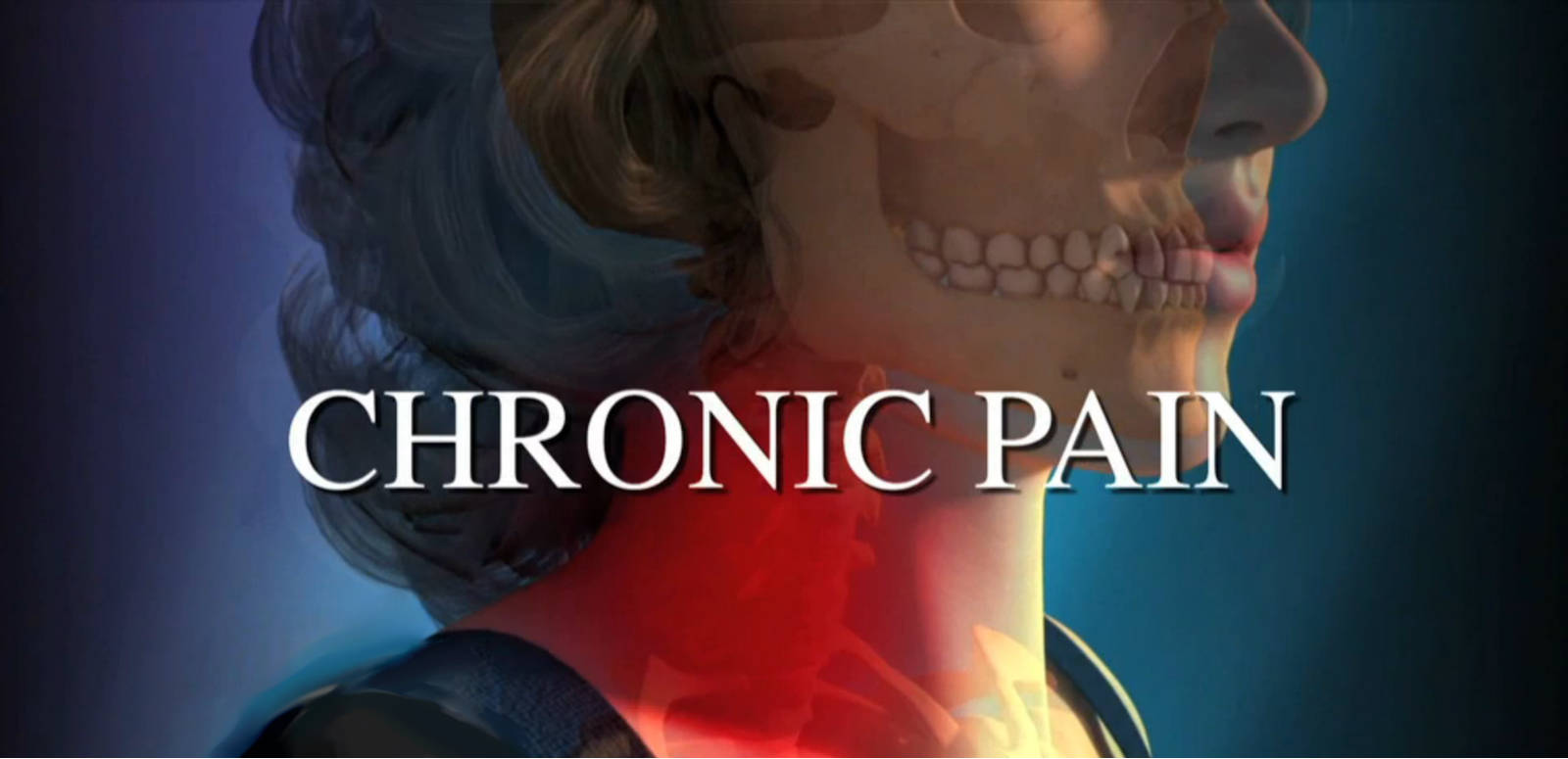 chronic pain with benign brain tumor